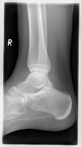 Röntgenbild eines Sprunggelenks franzis-Blogstory.schreibnacht.de